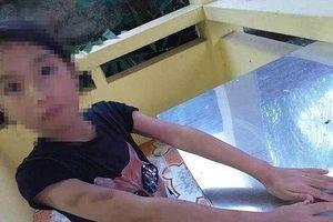 Quảng Ninh: Nữ gia sư đánh bé gái 9 tuổi bầm tím mặt