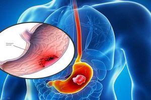 Phương pháp mới nhất trong điều trị ung thư dạ dày