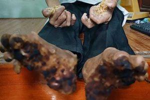 Bệnh 'người cây' cực kỳ hiếm gặp đã được ghi nhận ở Việt Nam