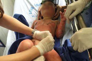 Hà Nam: 3 trẻ mầm non bỏng nặng khi học về kỹ năng cháy nổ