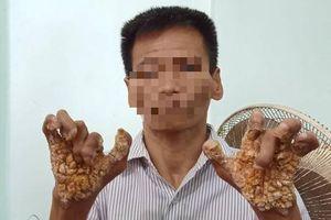 Bệnh 'người cây' lần đầu được phát hiện ở Việt Nam