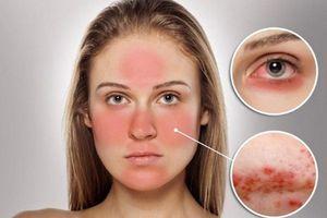 Cách phục hồi da bị mòn và lộ mao mạch do dùng kem trộn chứa corticoid