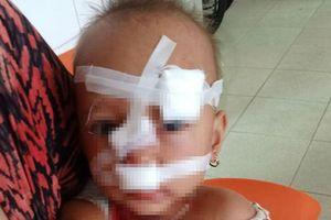 Bé gái 2 tuổi bị bố ném ly vào mặt phải khâu 12 mũi