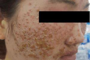 Thiếu nữ 'chết lặng' vì mặt sùi như tổ ong sau 2 lần dùng bột rửa mặt mua online