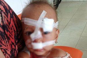 Chồng 'choảng' ly vào vợ lúc cãi nhau, con gái 2 tuổi bị vạ lây phải khâu 12 mũi