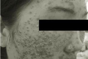Dùng bột rửa mặt mua trên mạng, mặt thiếu nữ 22 tuổi chi chít mụn nước