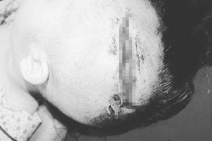 Bé gái 2 tuổi bị chó nhà người thân cắn lộ xương sọ
