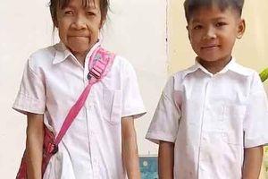 Bé gái 10 tuổi có gương mặt nhăn nheo như bà lão 60 vì mắc bệnh lạ