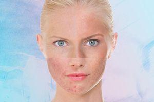 Phải làm thế nào khi da bị dị ứng mỹ phẩm?