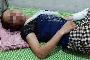 Điều tra vụ vợ bị chồng đánh gãy tay cùng nhiều vết thâm tím trên người