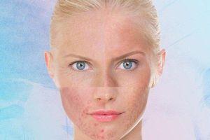 Phải làm thế nào khi làn da bị dị ứng mỹ phẩm?