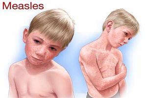 Cốm Subạc – Gạt bỏ nỗi lo bệnh ngoài da do virus