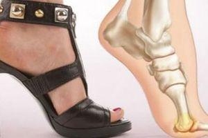 Tác hại của giày cao gót mà chị em phụ nữ cần biết