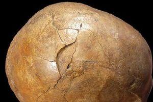 Bí ẩn vụ giết người thời kỳ đồ đá đã có lời giải