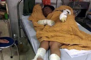Yên Bái: Thay gas để thui chó gây cháy, vợ chồng cùng con 7 tháng tuổi bị bỏng nặng