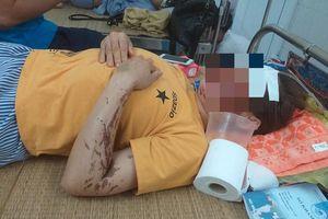 Vụ tạt axít vào phụ bếp ở Hòa Bình: Nạn nhân từng bị đe dọa giết