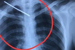 2 giờ phẫu thuật cứu sống 9X bị bạn dùng cây sắt đâm thấu cổ, xuyên phổi