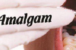 Amalgam – loại chất công ty Rạng Đông sử dụng thay thế thủy ngân thực chất là gì và có nguy hại không?