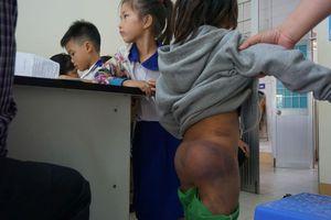 Nghi vấn 4 học sinh tiểu học ở Cà Mau bị người thân bạo hành