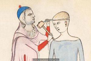 Kỹ thuật khoan hộp sọ của người cổ đại - chữa bệnh hay nghi lễ tế thần