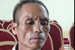 Nguyên nhân bé trai bị bác chém lìa tay ở Bắc Giang