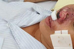 Tái bùng phát căn bệnh lạ, 12 người mắc 4 người tử vong, vi khuẩn ăn cả cánh mũi