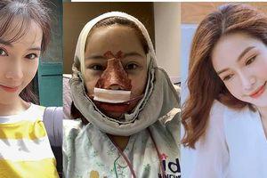 Nữ diễn viên từng bị khán giả tẩy chay công khai khuôn mặt 'đập đi xây lại'