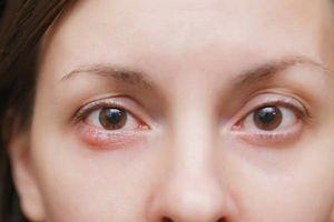 Nhiều người Việt bị mù vĩnh viễn do căn bệnh dễ bỏ qua