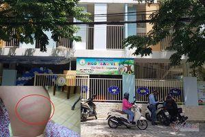 Bị tố bạo hành, bỏ đói trẻ, trường mầm non ở Đà Nẵng lên tiếng