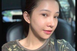 Công khai phẫu thuật thẩm mỹ toàn bộ gương mặt, Lưu Đê Ly khiến ai cũng choáng váng