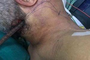Ngã tường rào, người đàn ông bị thanh sắt đâm xuyên cổ