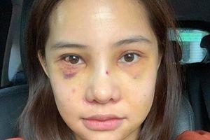 Lưu Đê Ly khoe trải qua 6 ca phẫu thuật ở Hàn để 'đập mặt làm lại', đẹp hay không chưa bàn chỉ biết là quá dũng cảm rồi!