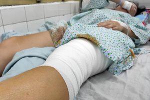 Nữ cổ động viên kể khoảnh khắc bị thương do pháo sáng ở Hàng Đẫy