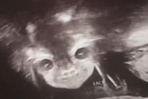 Đi siêu âm thai nhi 24 tuần tuổi, bà mẹ hết hồn khi thấy hình ảnh bé con như đang nhìn chằm chằm mình