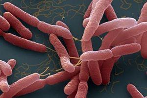 Những điều cần biết về bệnh truyền nhiễm Whitmore
