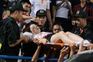 Khởi tố, bắt tạm giam kẻ nổ pháo sáng khiến nữ cổ động viên bị bắn trúng đùi trên sân Hàng Đẫy
