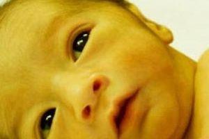 Dấu hiệu cảnh báo nguy hiểm trên da trẻ sơ sinh các mẹ cần biết