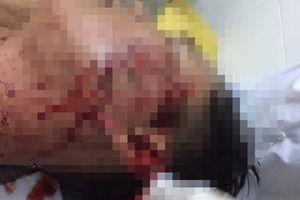 Sóc Trăng: Khởi tố kẻ dùng ly bia đập vào mặt đại úy công an