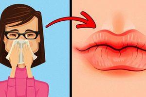 8 điều mà đôi môi đang hé lộ sức khỏe có vấn đề mà nhiều người không hề để ý