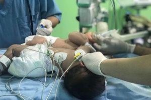 Bệnh viện Nhi đồng 1 đang mổ ca song sinh dính liền phần gan