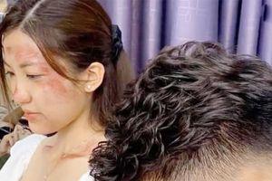 Lộ ảnh Trà 'Tuesday' (Hoa Hồng Trên Ngực Trái) bị đánh tơi tả: Là Khuê ra tay hay Thái bạo hành?