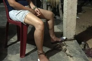 Vụ chồng xích vợ ở Huế: Chồng dùng búa đập lên đầu, bóp cổ vợ