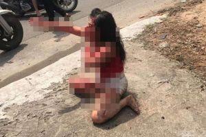 Cô gái bị rạch mặt dã man: Chồng hờ xuống tay tàn nhẫn vì níu kéo tình cảm bất thành
