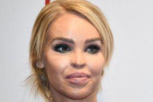 Nữ MC đăng ảnh gương mặt bị tàn phá vì bạn trai tạt axit