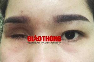 Cô gái mù vĩnh viễn một bên mắt vì nâng mũi bằng chất làm đầy