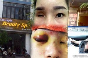 Công an vào cuộc điều tra, làm việc với chủ tiệm spa nâng mũi khiến cô gái bị mù vĩnh viễn