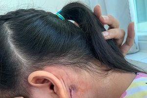 Ghi nhận bệnh nhân nhiễm vi khuẩn 'nguy hiểm' thứ 2 tại Bình Định