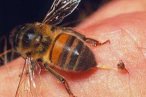 Hi hữu, cấp cứu vì tai nạn giao thông nhưng bác sĩ lại đi 'chữa' ong đốt