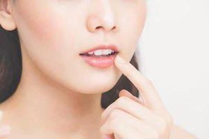 10 dấu hiệu liên quan đến sức khỏe từ thay đổi bất thường trên đôi môi