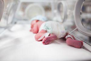 Cụ bà U80 chỉ có một lá phổi hạ sinh bé gái nặng 600 gram